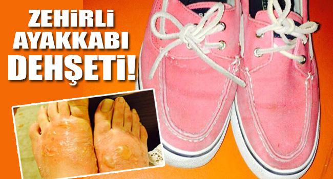 Zehirli ayakkabı dehşeti!
