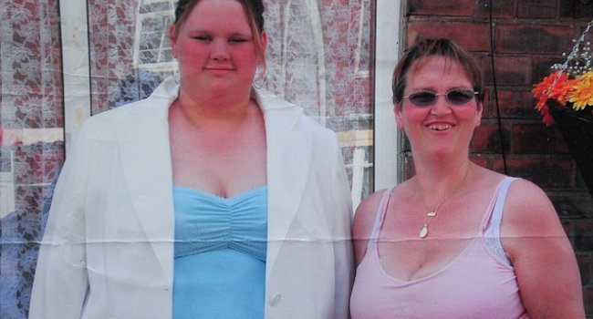 Obezdi anoreksik oldu